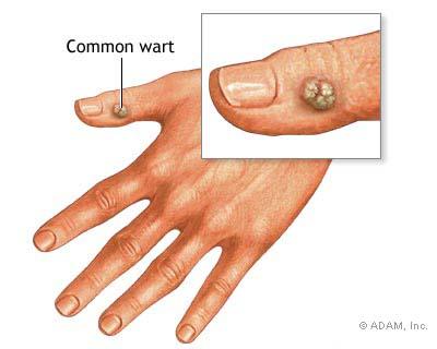 i sintomi di papilloma virus