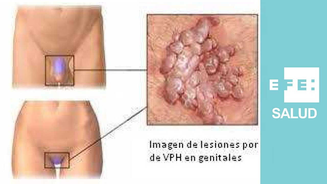hpv en mujeres sintomas)