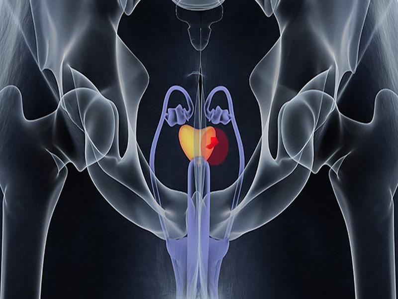 Cancer de prostata metastasis osea supervivencia, Masturbeaza de 3 ori pe zi cancerul de prostata