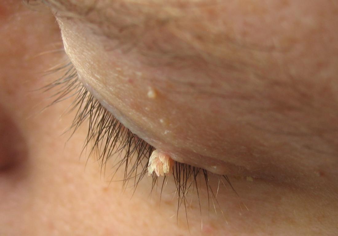 Papilloma colli neck -