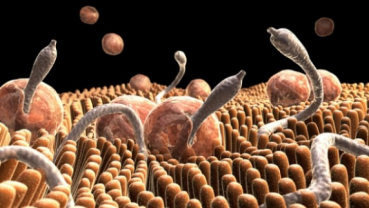 Tipuri de viermi intestinali la oameni