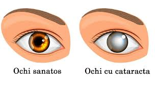 simptome de ochi de helmint și tratament