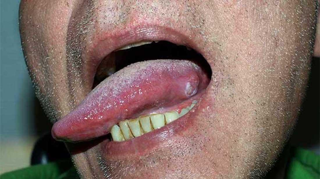 Human papillomavirus on the tongue.