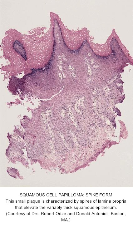 squamous papilloma esophagus pathology)