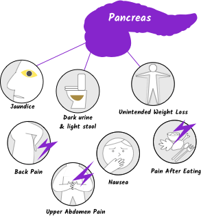 pancreatic cancer weight loss)