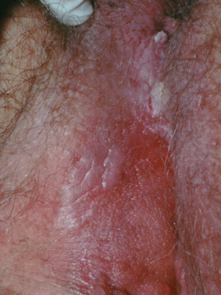 Hpv red genital warts,