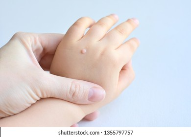 warts on hands small)