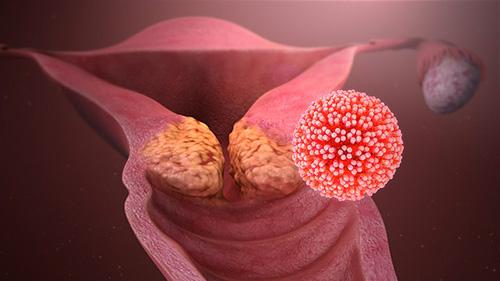 Virus del papiloma humano en alto riesgo