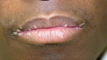 papilloma lip