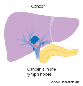 Cancer metastatic hepatocellular