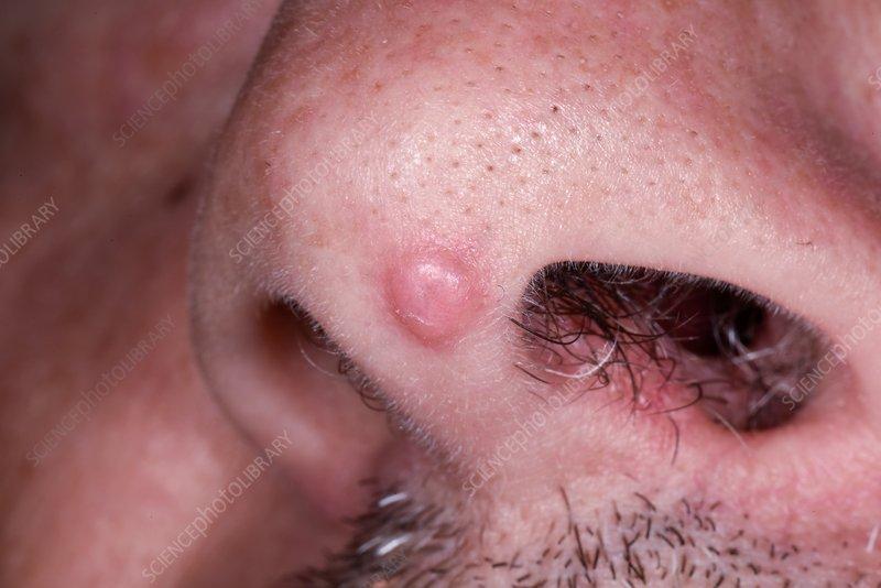 papilloma in face)