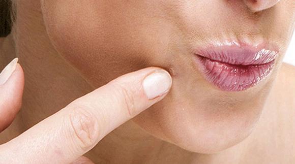 cauze cancer de sigmoid pachet detoxifiere forever