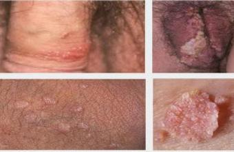 Virus hpv penyebab kutil kelamin,