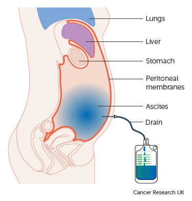 Peritoneal cancer with ascites,