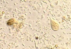 giardia medicina alopata)