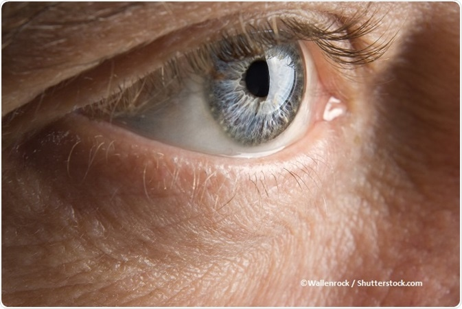 Vaccinul impotriva cancerului de col uterin reactii adverse - Papilloma sotto occhio
