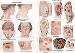papillomavirus hayeren)