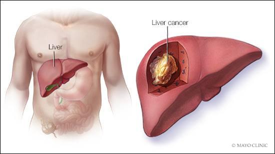 simptome cancer hepatocelular)