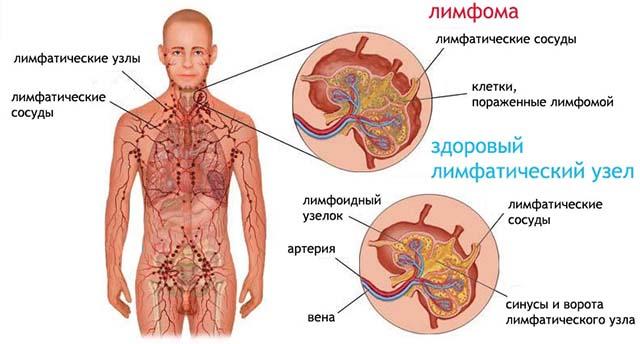 Cancer limfatic stadiul 2 Calculi renali | Pietre la rinichi | Simptome, tratament, cauze