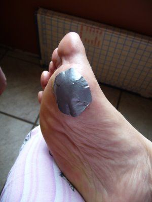 wart on foot removal duct tape)