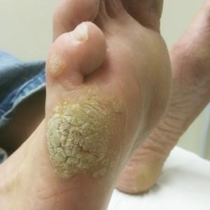 papilloma on my foot)