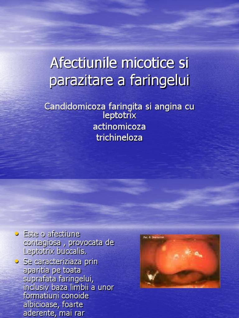 Dicționar medical - termeni medicali explicați