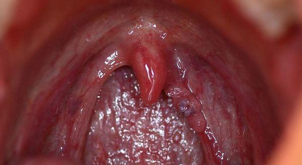 o que e o papiloma virus