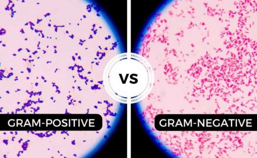 bacterii gram pozitive