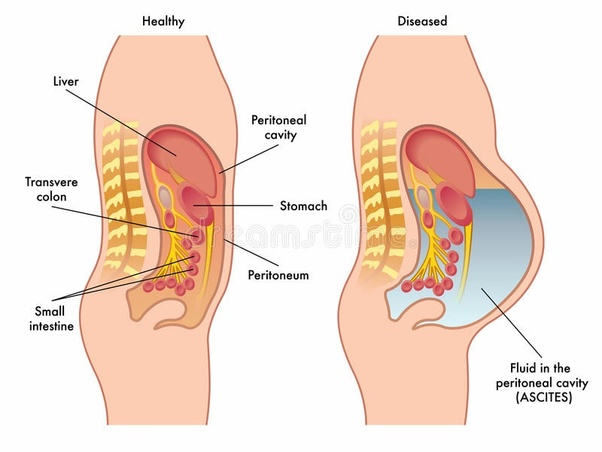 Gastric cancer ascites.