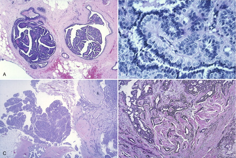 papilloma with focal atypia)