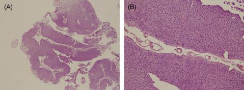 papillary urothelial neoplasm tumors)