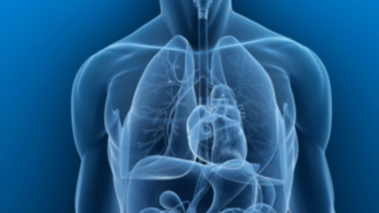 Benign cancer in lungs. Cancer pulmonar