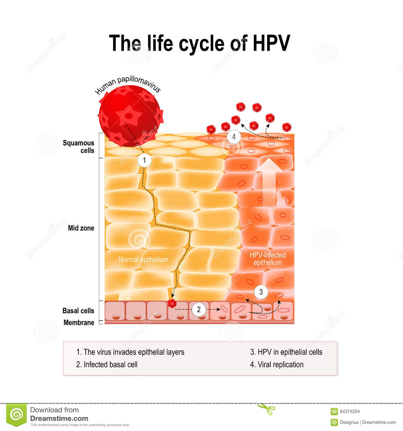 does hpv virus cause warts)