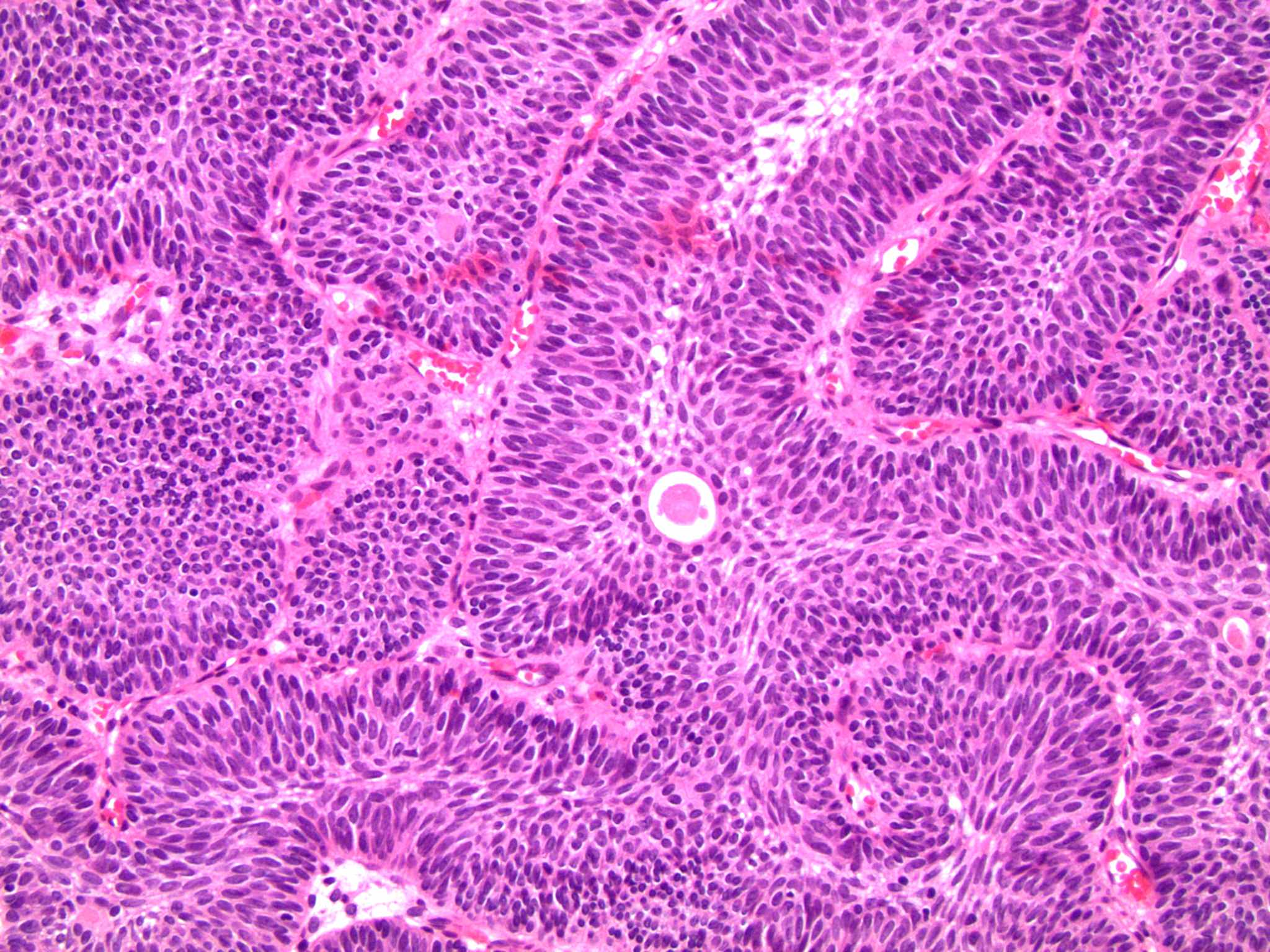 bladder papilloma histology)
