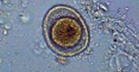 boli parazitare)
