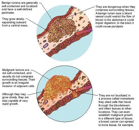benign cancer tumor