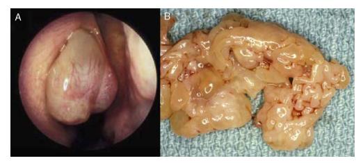 Papiloma nasal escamoso benigno