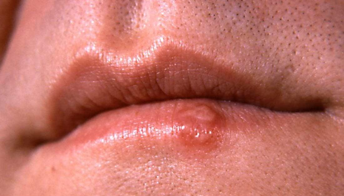 Hpv warts mouth symptoms