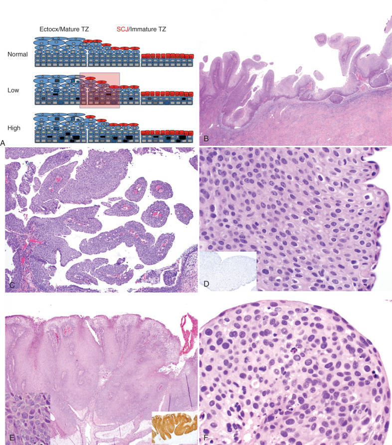Papilomavirusurile Umane Si Cancerul de Col Uterin Squamous papilloma and condyloma acuminatum