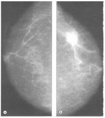 cancerul mamar invaziv