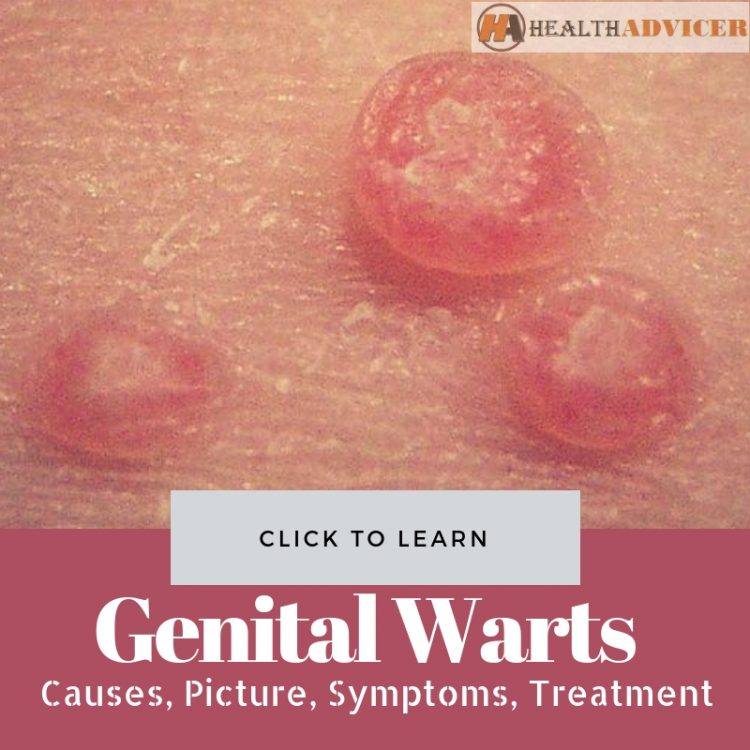 hpv causes warts