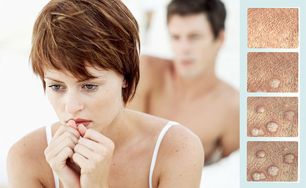 Buy Viagra From London | Online DrugStore Hpv treatment london