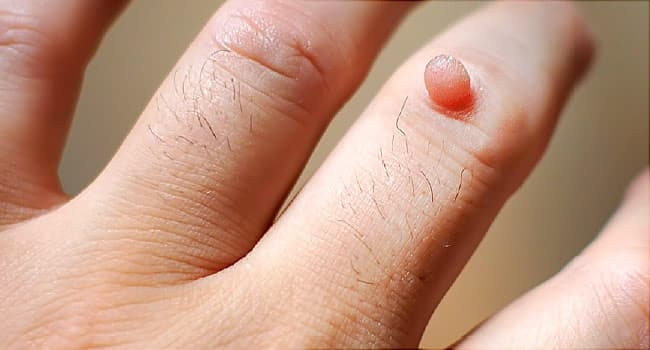 warts on hands why cancer endometrial mas frecuente