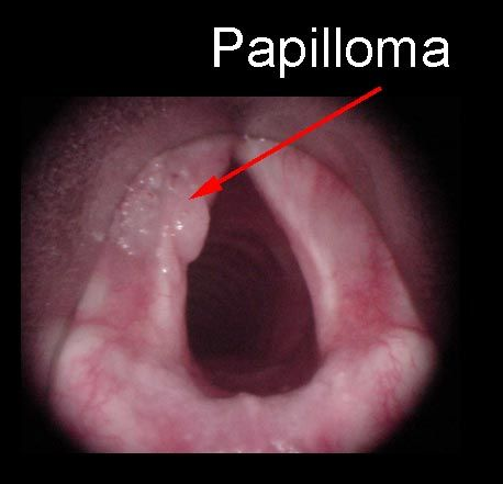 Laryngeal papillomas symptoms