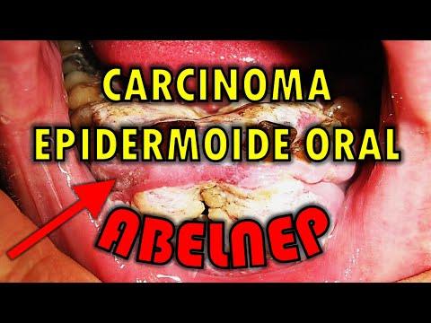 cancer amigdala palatina)
