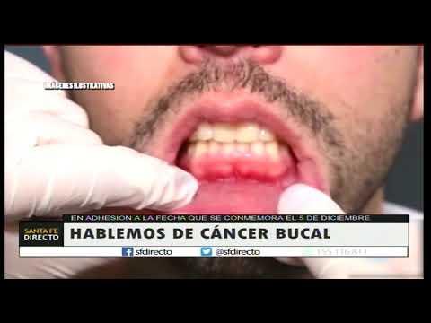 cancer bucal virus
