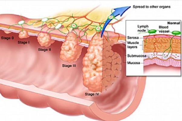cancer colon liver)