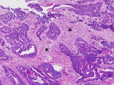 cancer colon pathology