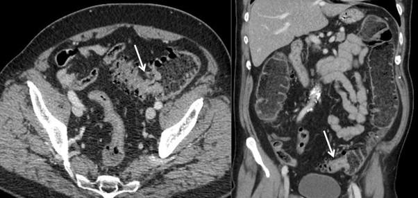 Cancer colon scanner