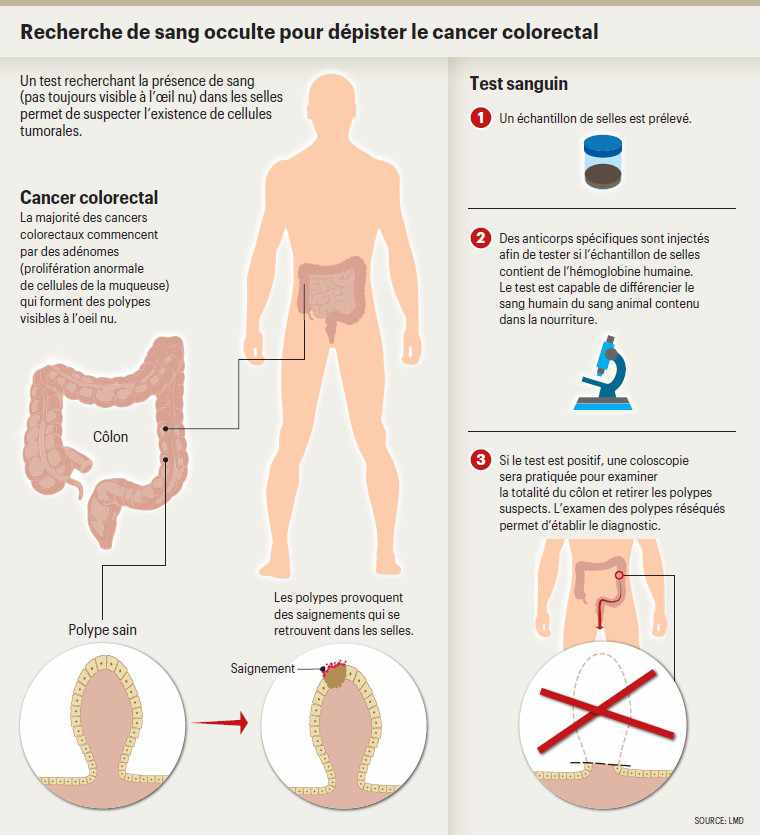 cancer colorectal douleur)